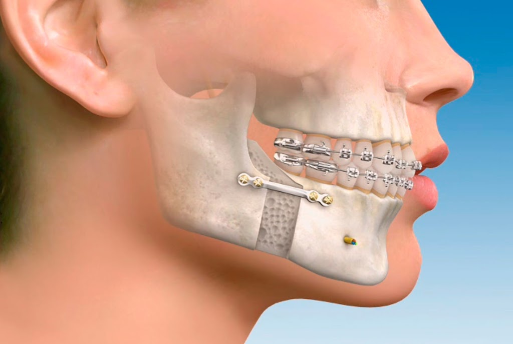 cirugia-maxilofacial-cabecera