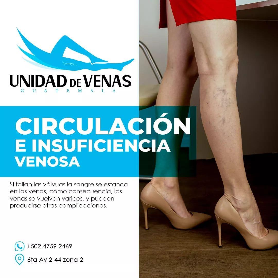 circulacion venosa guatemala