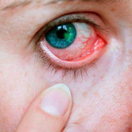 abrasion corneal guatemala