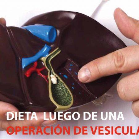 dieta-vesicula-guatemala