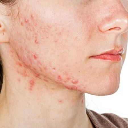solucion acne guatemala